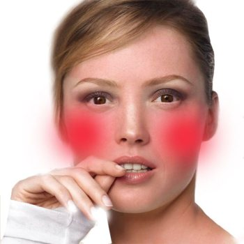 Natural remedy facial flushing