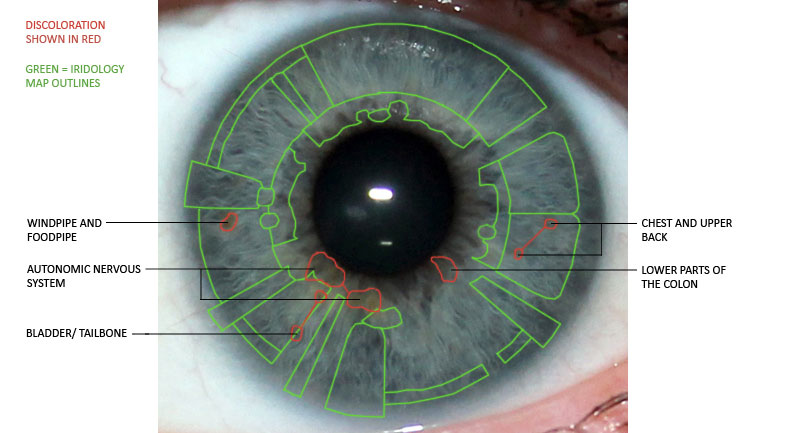 iridology, discolouration, eye reading, left iris