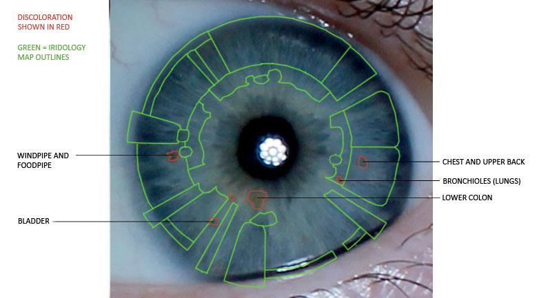iridology, discolouration, eye reading, left iris
