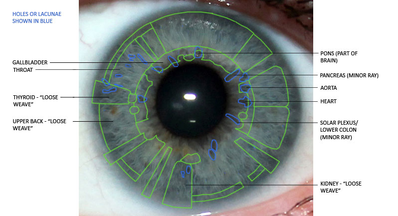 iridology, holes, lacunae, eye analysis