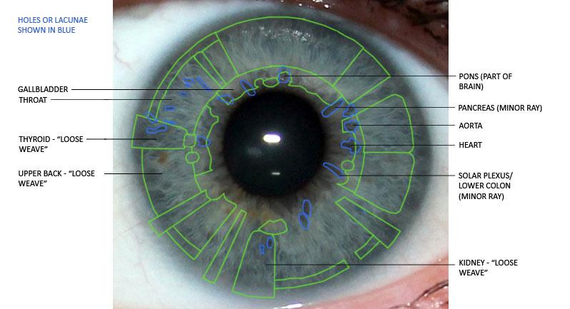 iridology, holes, lacunae, eye analysis