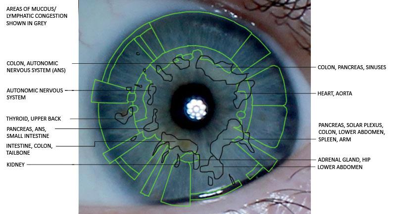 iridology, mucous congestion, iris reading, iris analysis, eye analysis