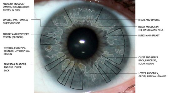 eye iridology, mucus congestion, iris reading, iris analysis, eye analysis