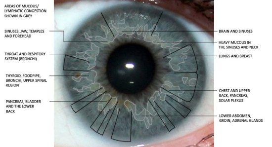 Eye Iridology Surprising Findings Iris The Picture Of Health