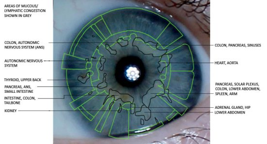 eye iridology
